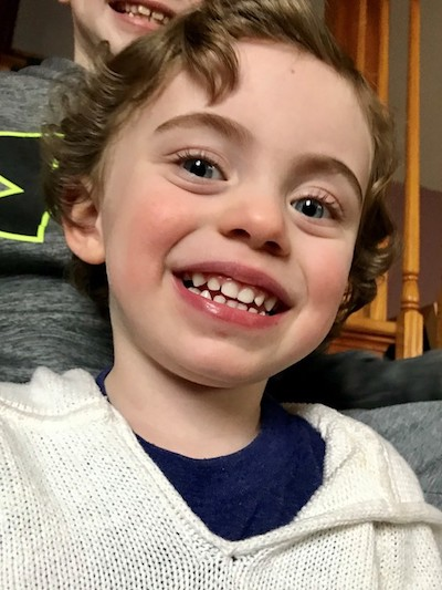 <p><strong>KELLEN, AGE 2</strong></p> <p>&#8220;We were referred to Dr.STITCH by our Pediatrician after Kellen's first big fall, where his tooth cut his through his lip.  The service was quick and fantastic!&#8221;</p>