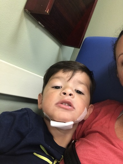 <p><strong>Brandon, Age 3</strong></p> <p>&#8220;Brandon split his chin while jumping into the pool.  I called Dr.STITCH.  Within 30 min we were in the ER, checked in, set up, stitched up with no tears and out the door!&#8221; </p>