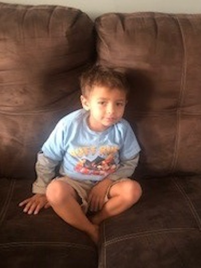 """<p><strong>Alessandro, Age 2</strong></p> <p>""""It was a wonderful experience. Dr. George met us at the hospital at 2:00 in the morning. He did an amazing job stitching his eyebrow and has little to no scar. I am so pleased with the three doctors and can't say enough wonderful things about the them, office and staff. Highly recommend!""""</p>"""