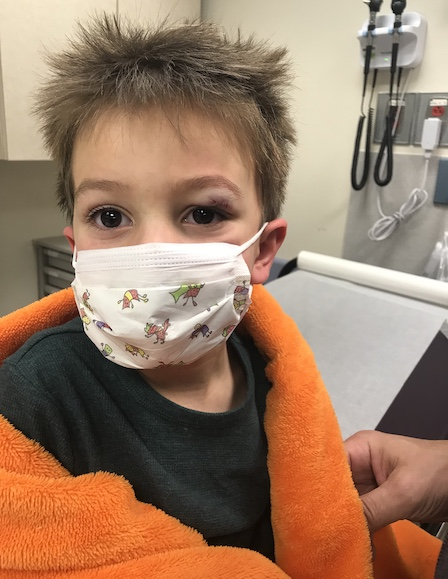 """<p><strong>Joseph, Age 4</strong></p> <p><em><strong>Incident:</strong> Joseph received a laceration above his left eye while playing at home in his bedroom.</em></p> <p>""""The experience with Dr.STITCH was fantastic. Jenny (Dr.STITCH operator) answered the call and got in touch with Dr. George right away. We met him in Winthrop ER and the whole process took a little less than 2 hours.""""</p>"""