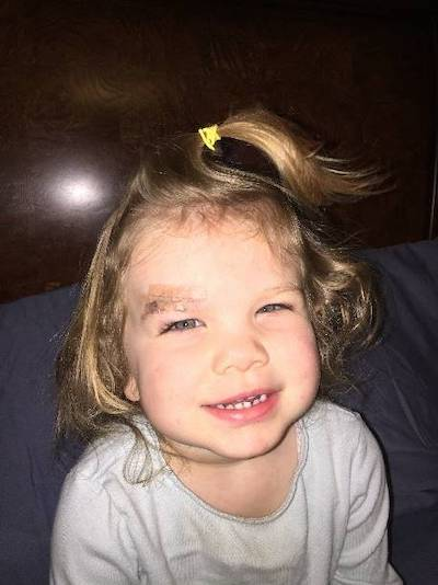 """<p><strong>Jenna, Age 2</strong></p> <p>""""Dr. Rojas met us at the office. He was great with my daughter and wife. Explaining everything as he was going along. We were in and out in 30 minutes completely at ease knowing we did the right thing for our 2 year old""""</p>"""
